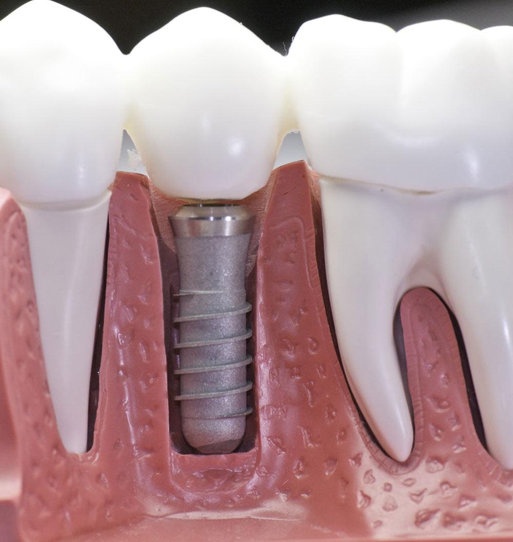 Implantologia   Eccellenze   Studio Dentistico Vitullo   Dentista a Chieti