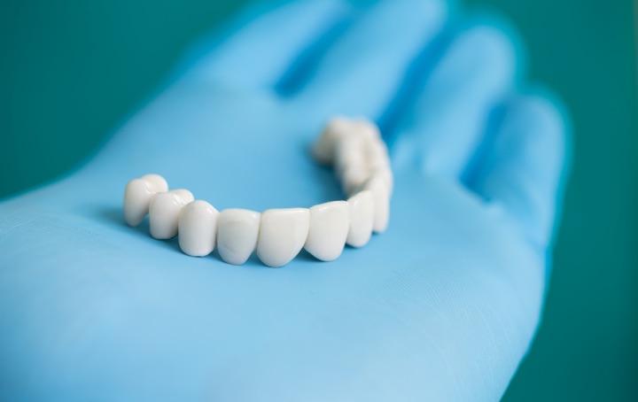 Implantologia | Trattamenti | Studio Dentistico Vitullo | Dentista a Chieti
