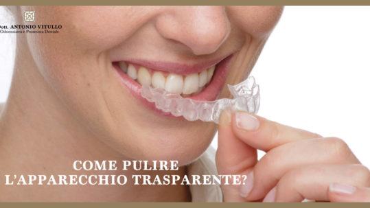 Come pulire l'apparecchio trasparente | News | Studio Dentistico Vitullo | Dentista a Chieti